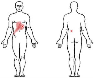 abdominal obliques trigger point