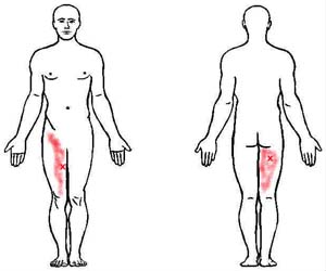 adductor magnu trigger point