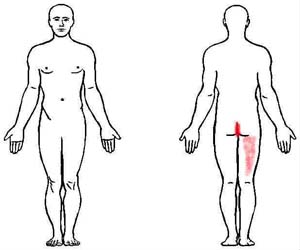 coccygeus trigger point