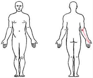 extensor carpi ulnaris trigger point