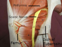 gluteal sciatic nerve labeled