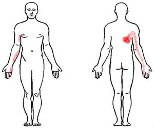 latissimus dorsi trigger point