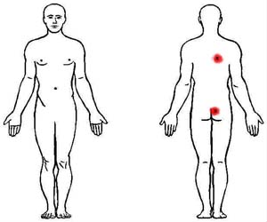 multifidi trigger point