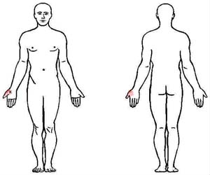 opponens pollicis trigger point