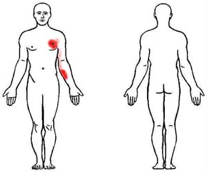 pectoralis major trigger point