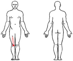 rectus femoris trigger point