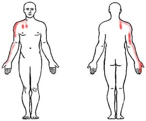 scalene trigger point
