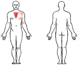 sternalis trigger point
