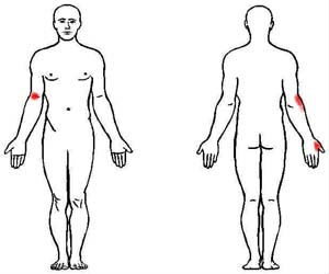 supinator trigger point