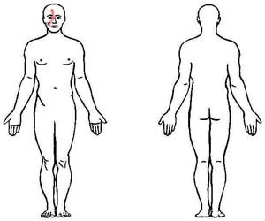 zygomaticus trigger point